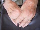 Muttis Hände in Bauschlott am 10.07.2010